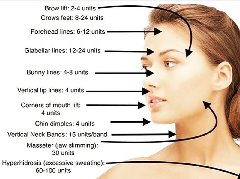 Botox Injections - Pittsfield, MA